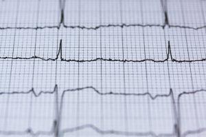 EKG diagnostics.